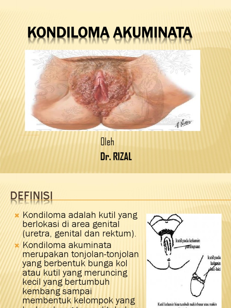 Condilomatoza genitală