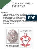 CRANEOTOMIA + CLIPAJE DE ANEURISMA