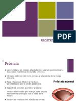 Prostatitis e Hiperplasia Prostatica Benigna