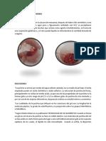 Resultados y Discusiones Biotecnologia 3