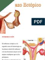 embarazo-ectopico-presentacion