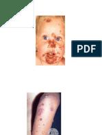 infeksi bakteri pada kulit.pptx