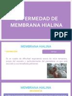 Enfermedad Membrana Hialina_Karen Chávez