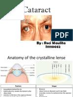 Presentasi Cataract