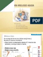 Diapo Leucemia Mieloide Aguda