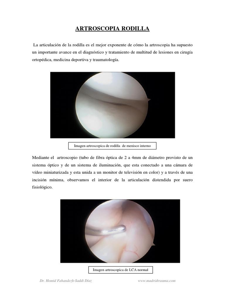 Injerto de colageno menisco