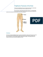 Distal Femur fracture