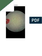 Anatopato Placas