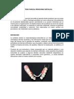 Protesis Parcial Removible Metalica