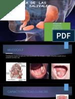 Patologia-de-las-glándulas-salivales.pptx