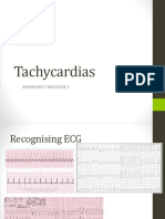 ACLS for Tachycardia