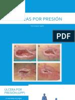 Ulceras por presión.pptx