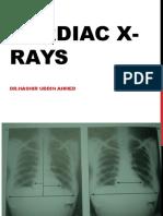 X-Ray CVS