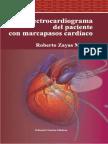 El Electrocardiograma Del Paciente Con Marcapasos Cardiacos