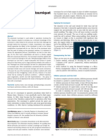 malanjum2009_Procedures under tourniquet.pdf