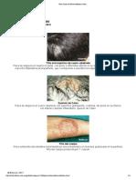 Dermatofitosis Tin As