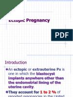 Ectopic Pregnancy.yibe