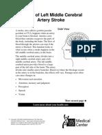 Left Mid Cerebral Artery Stroke