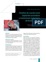 Paralisis de Cuerda Vocal Izquierda Secundaria