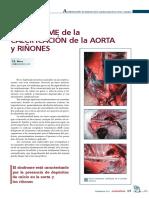 El sindrome de la calcificacion de la aorta y rinones.pdf