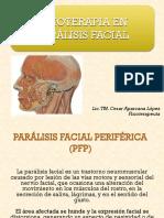 fisioterapia en paralisis facial