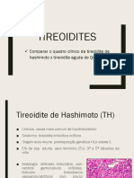 Tireoidites e Hipertireoidismo