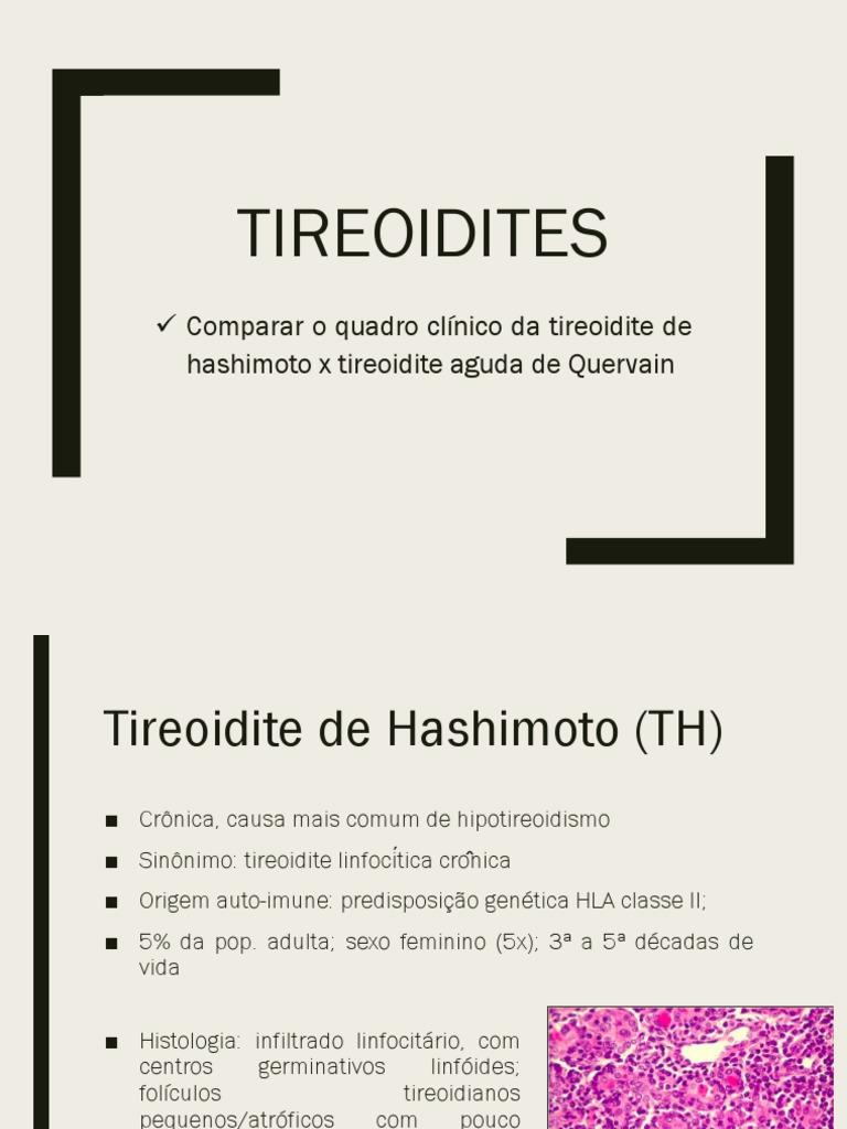 Tireoidite De Hashimoto Download