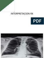Interpretacion Rx y Tmg