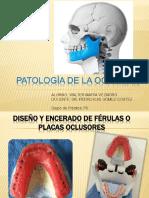 Placas Oclusales