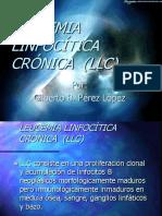 10. Leucemia Linfocítica Crônica
