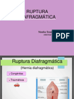 Ruptura de Diafragma