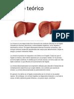 Cirrosis Hepática.docx Marco Teorico