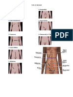Types of Incision