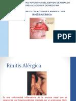 RINITIS ALERGICA.pptx
