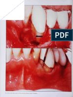 Resin Ionomer and Hybrid Ionomer Cements Wound Healing in Periodontal Lesions Dragoo 1997