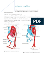 Cardiopatías congénitas.docx