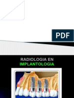 radiografia en implantes.pptx