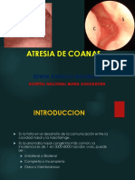 Atresia Coanas (3)