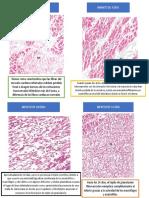 Histopatologia de Infarto Miocardio
