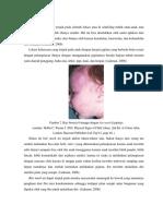 bitemark child abuse fixx.docx