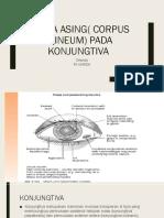 Benda Asing( Corpus Alineum) Pada Konjungtiva.pptx