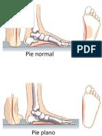 pie normal y plano.docx