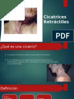 Cicatrices Retractiles
