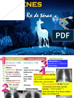 10.Lectura Rx Torax R Flores