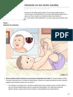 Cómo Tratar El Estreñimiento en Los Recién Nacidos