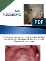 Adenoma Pleomorfo (1)