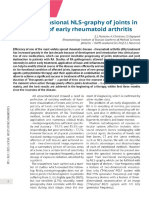 Three Dimensional Nls Graphy of Joints in Diagnostics of Early Rheumatoid Arthritis