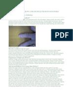 Cedera Otot Dan Tendon - Bahan Belajar Orthopedi