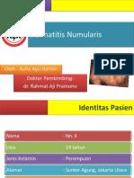 Case Dermatitis Numularis