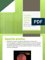 Gastritis Atrófica en El Adulto Mayor